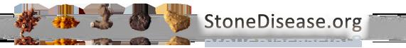 StoneDisease.org